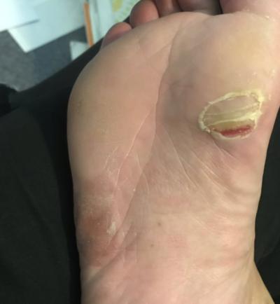 足の裏に亀裂が出てる